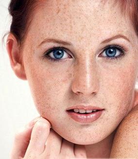 如何预防脸上长斑?生活细节需注意,北京美容
