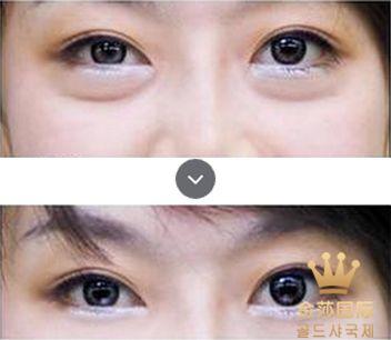 专业去眼袋的方法,北京美容