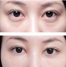 去除眼袋哪种方法最好,北京美容