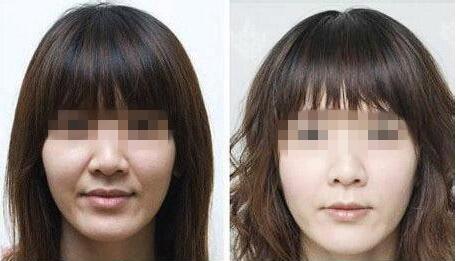 巧喝柠檬水可以让女人美白肌肤,北京美容