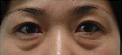 眼袋大是什么原因?看完我震惊了!