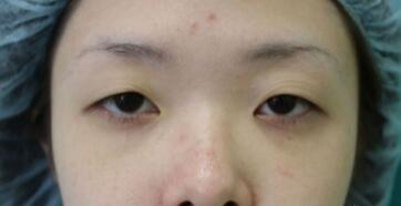 业内人士曝光打瘦脸针副作用别再轻易打