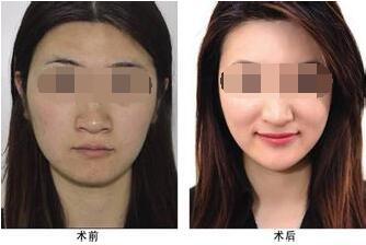 冬季美白还肌肤一个清白,北京美容