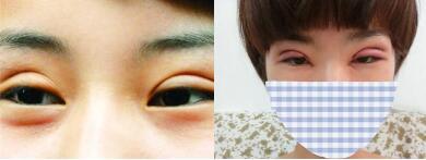 皮下速接不割双眼皮也能有迷人大眼