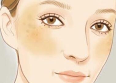 黄褐斑是怎么形成的?你可能被引导进了误区