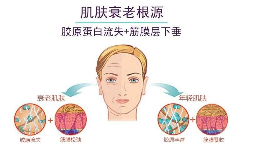 皮肤松弛怎么变紧致