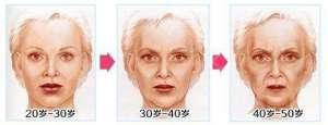 摆脱皱纹困扰 让肌肤恢复年轻