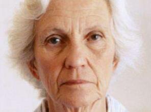 面部提升 年轻再现让你重返18岁
