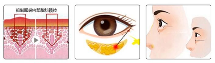 用这样的方法 消除眼袋既简单又容易
